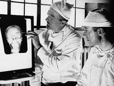Surgeons looking at X-ray of skull of lobotomy patient